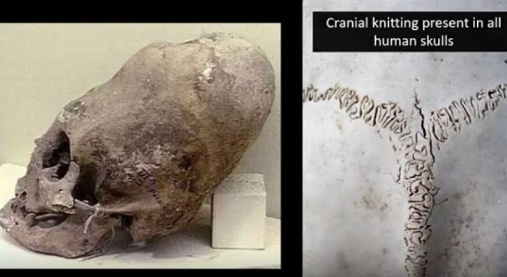 elongated skull malta